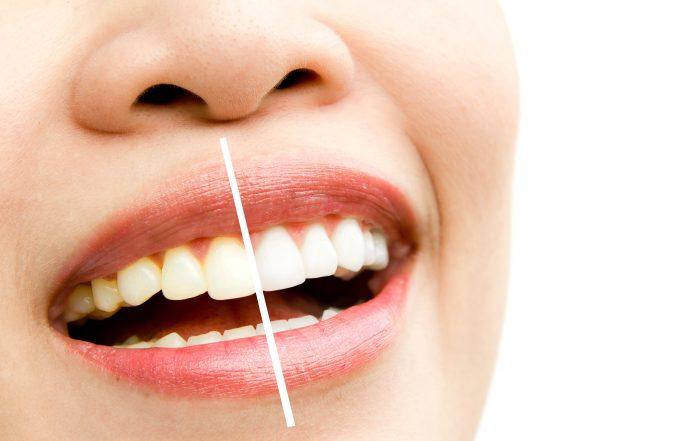 Lente de Contato Dentária