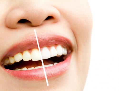 Como cuidar das lentes de contato dentárias?